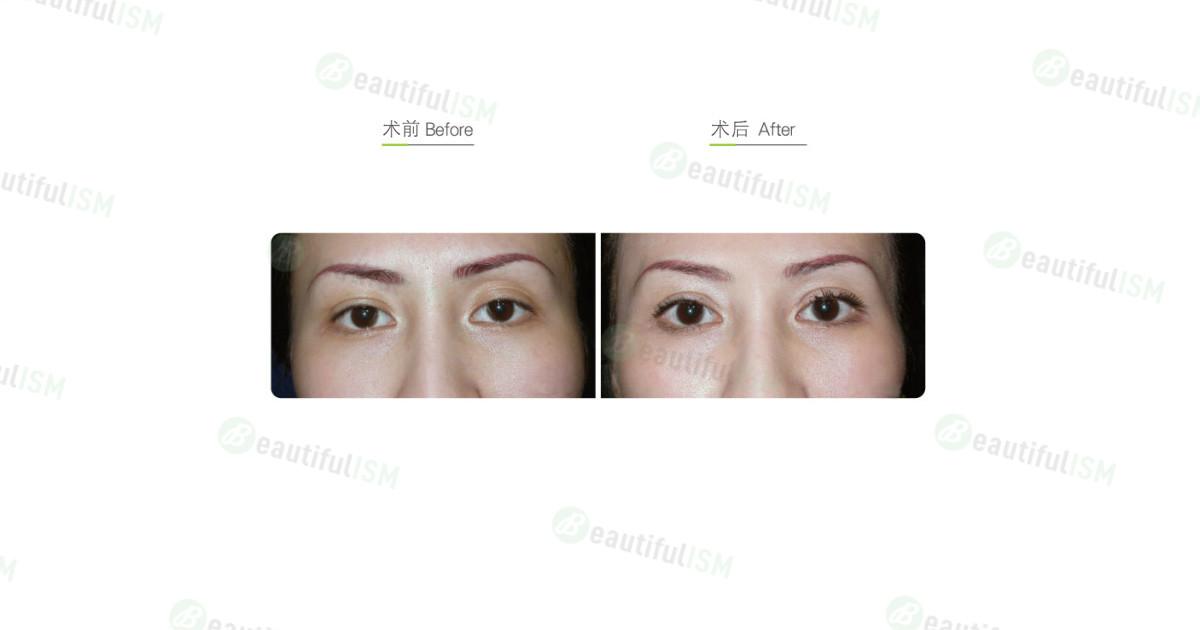 自体脂肪矫正眼窝凹陷-上眼皮(女)效果图,案例前后对比照片