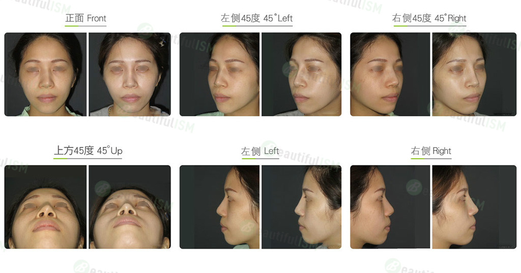 鼻骨缩减+韩式隆鼻修复(女)效果图,案例前后对比照片