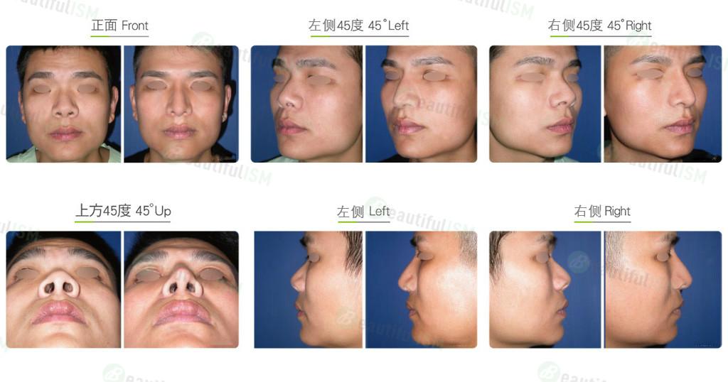朝天鼻整形+韩式隆鼻(男)效果图,案例前后对比照片