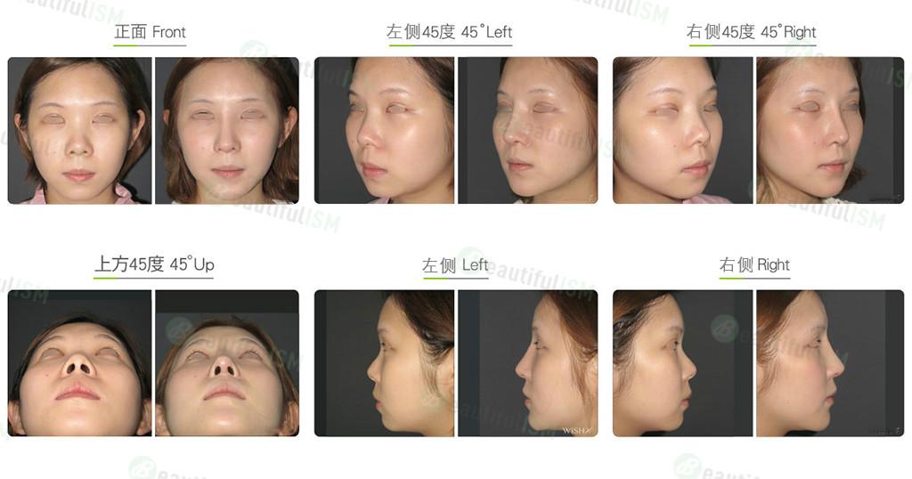朝天鼻整形+韩式隆鼻+鼻骨缩减+鼻翼缩小(女)效果图,案例前后对比照片
