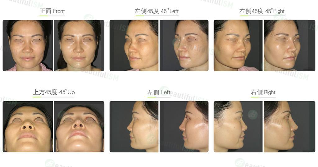 马鞍鼻矫正+韩式隆鼻+鼻骨缩减(女)效果图,案例前后对比照片