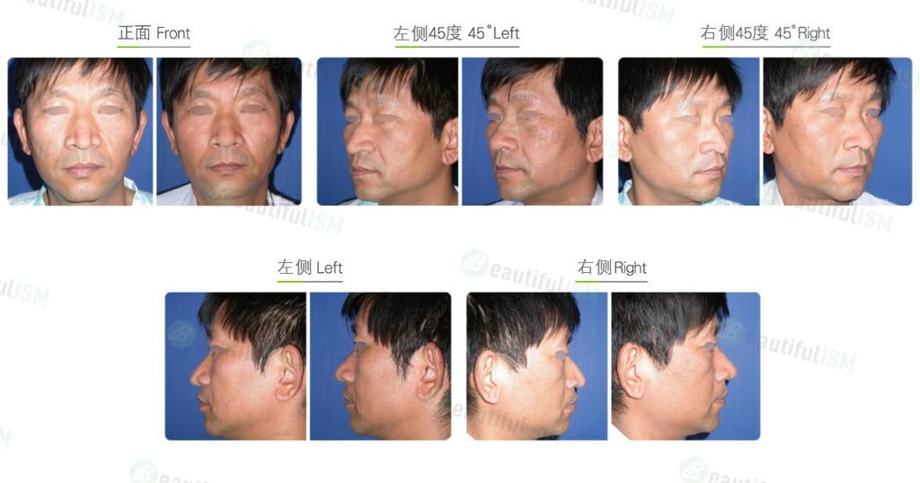 鹰钩鼻矫正+韩式鼻雕(男)效果图,案例前后对比照片