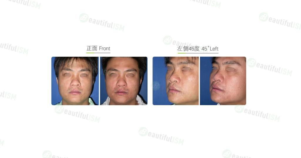 鼻孔外露整形手术-单边(男)效果图,案例前后对比照片
