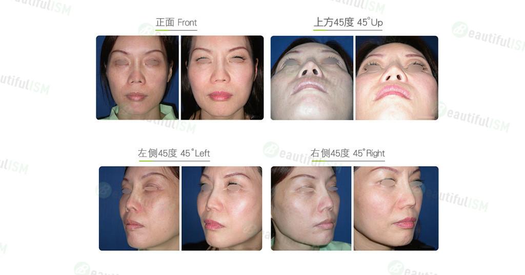 鼻翼修复(女)效果图,案例前后对比照片