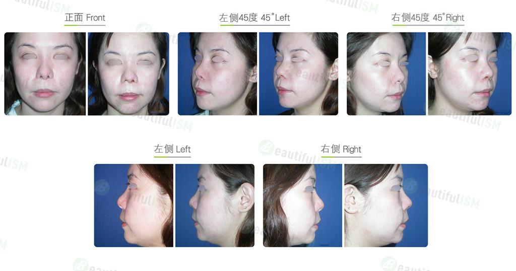 鼻中柱缩减(女)效果图,案例前后对比照片