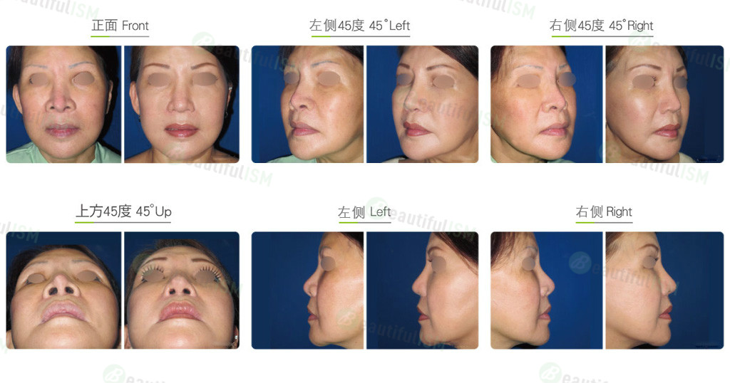 硅胶鼻修复(女)效果图,案例前后对比照片