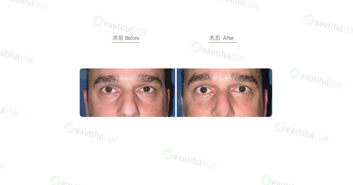 自体脂肪矫正眼窝凹陷-泪沟(男)效果图,案例前后对比照片