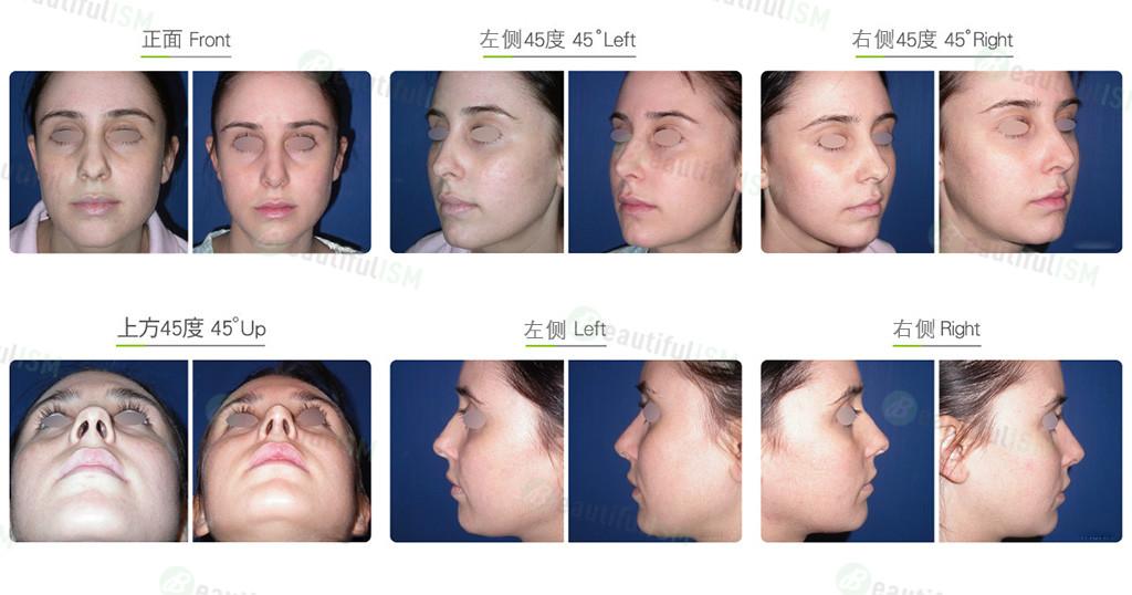 缩鼻(女)效果图,案例前后对比照片