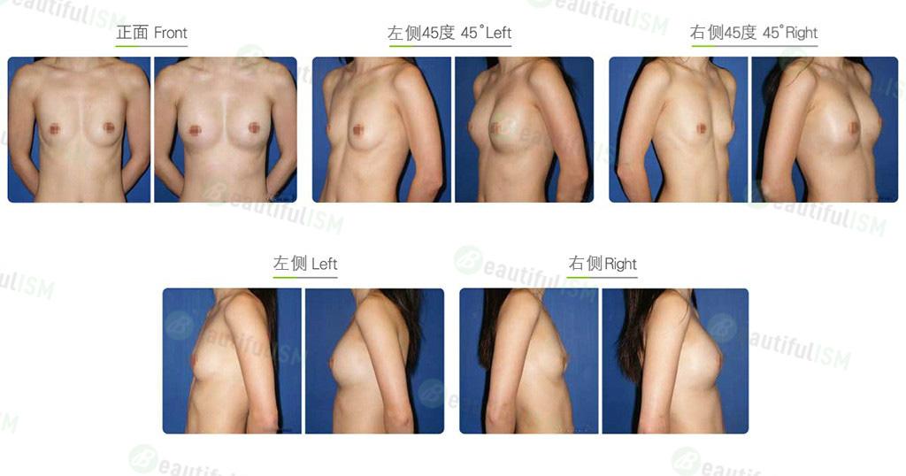 自体脂肪大小乳房矫正效果图,案例前后对比照片