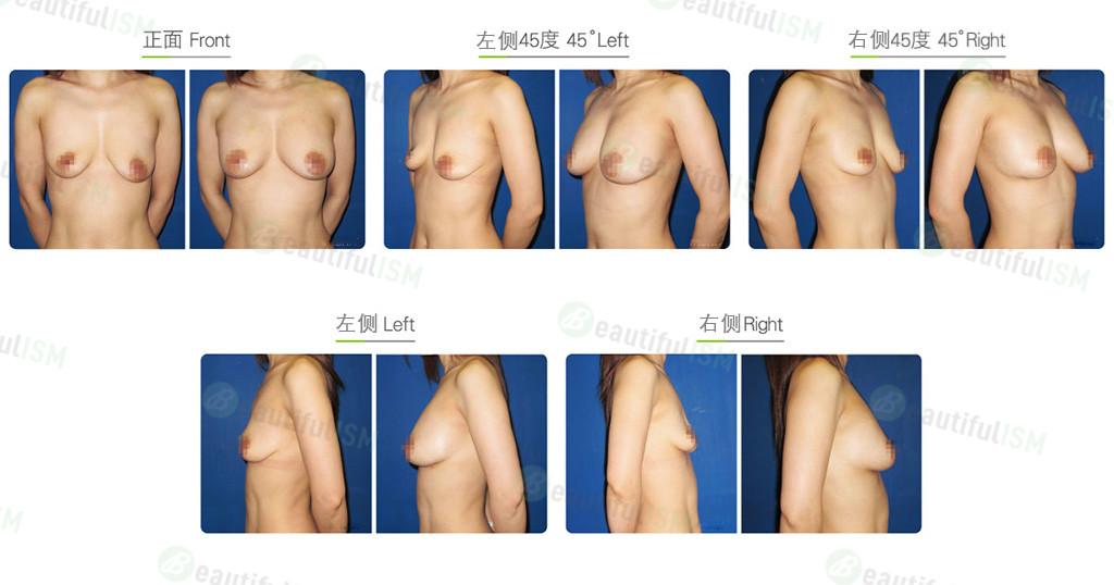 自体脂肪乳房下垂整形效果图,案例前后对比照片