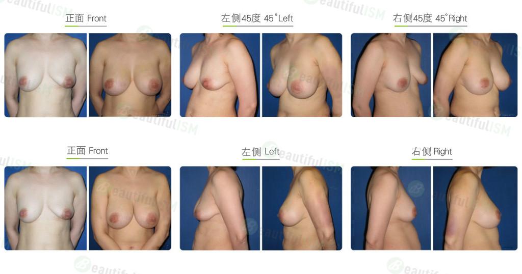 复合式隆胸效果图,案例前后对比照片
