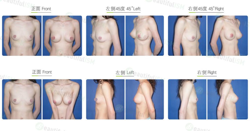 胸肌下鸡胸整形效果图,案例前后对比照片