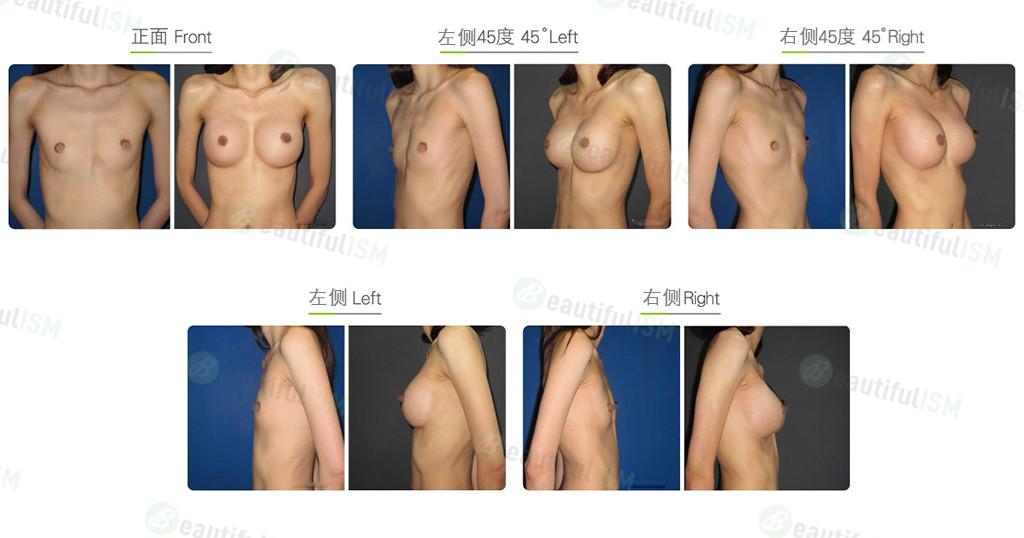 胸肌下漏斗胸整形效果图,案例前后对比照片