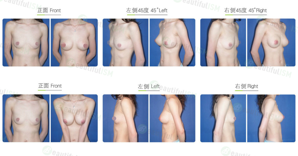 胸肌下大小胸整形效果图,案例前后对比照片