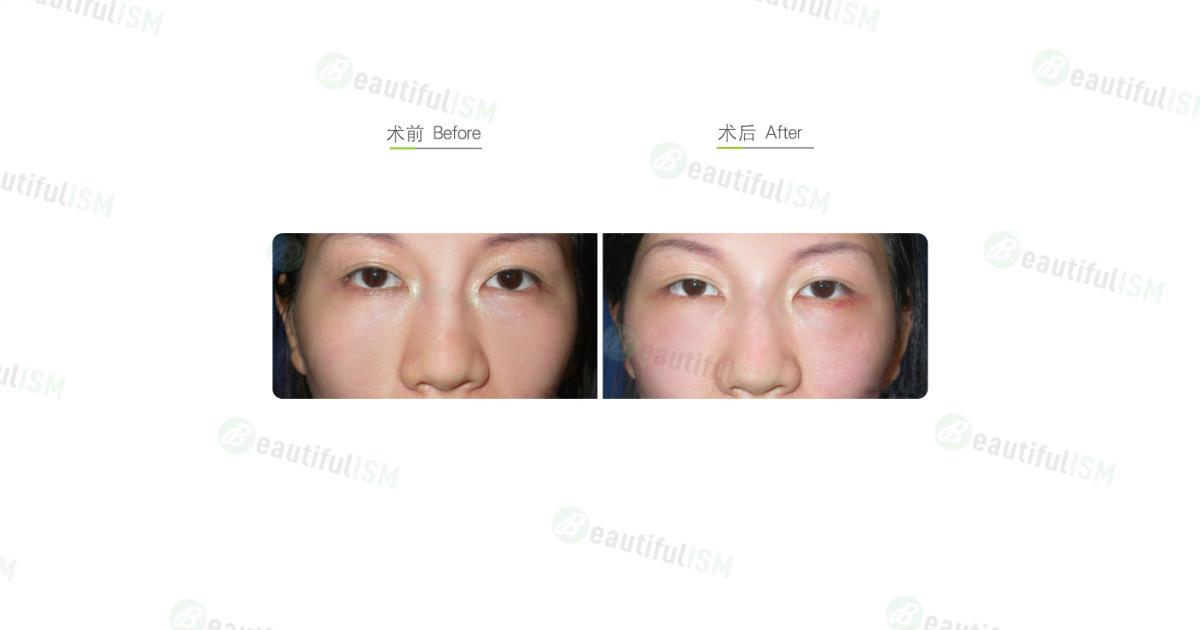 内切抽眼袋手术-术后一周效果图,案例前后对比照片