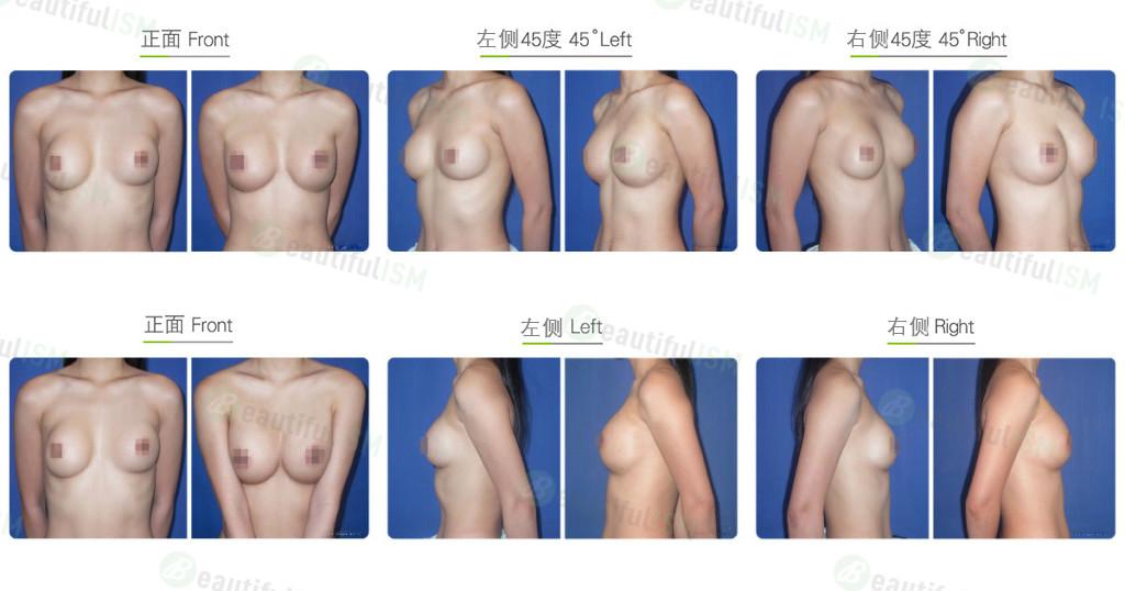 隆胸修复-空间换位效果图,案例前后对比照片