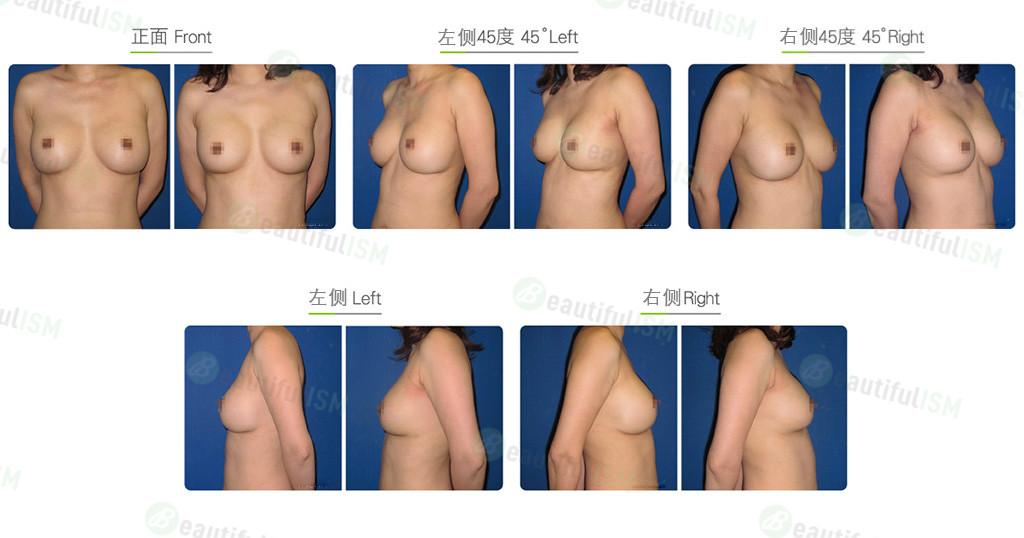 隆胸修复-假体置换效果图,案例前后对比照片