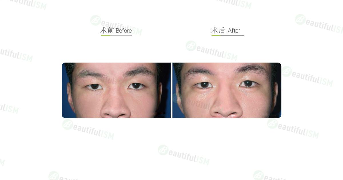 异体脂肪丰卧蚕(男)效果图,案例前后对比照片