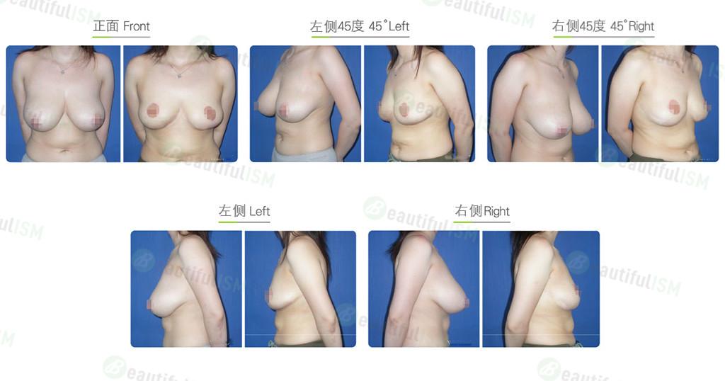 乳房缩小-胸下缘切口缩乳效果图,案例前后对比照片