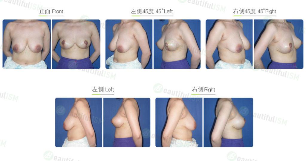 乳房缩小-倒T字切口缩乳效果图,案例前后对比照片