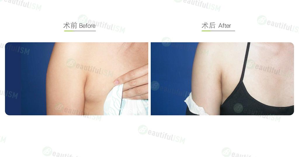 副乳切除效果图,案例前后对比照片