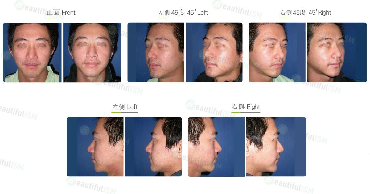 垫下巴+卡麦拉假体植入(男)效果图,案例前后对比照片