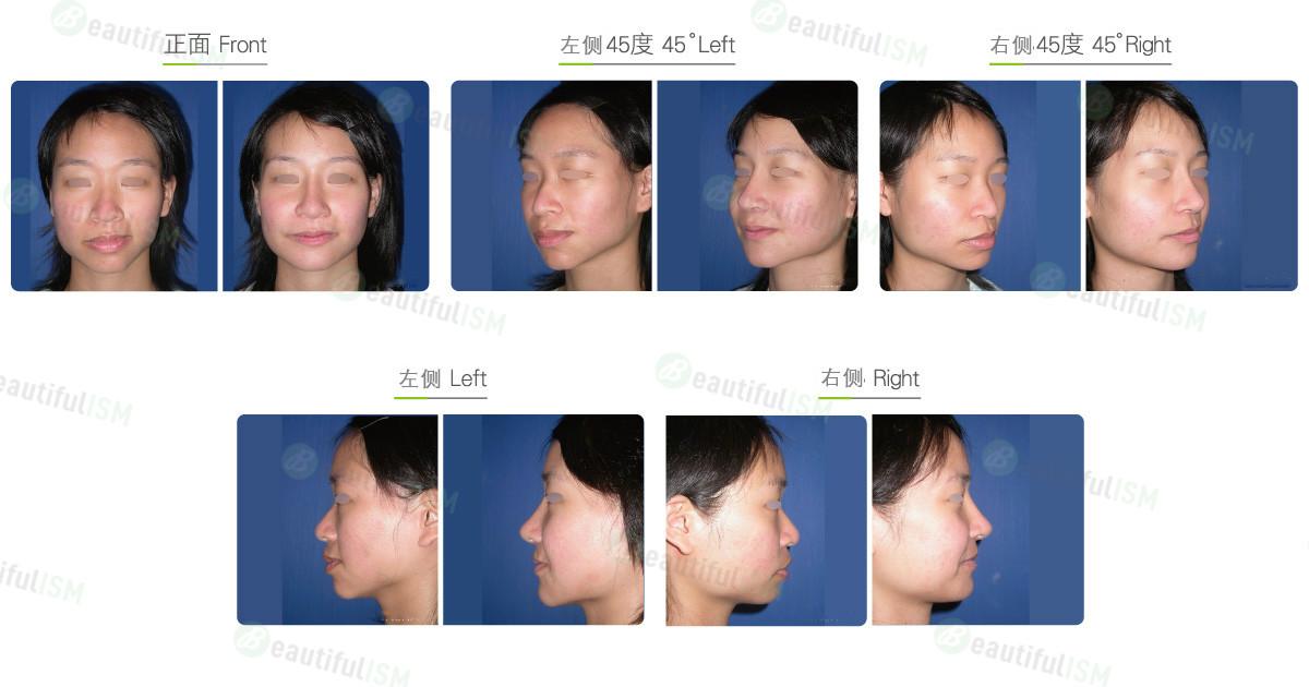 垫下颌骨-人工骨假体+不对称脸矫正(女)效果图,案例前后对比照片