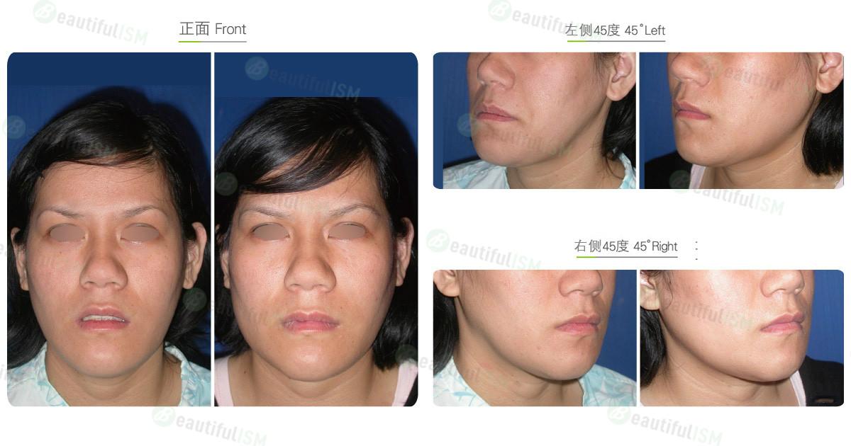 垫下颌骨-硅胶假体下颌骨片(女)效果图,案例前后对比照片