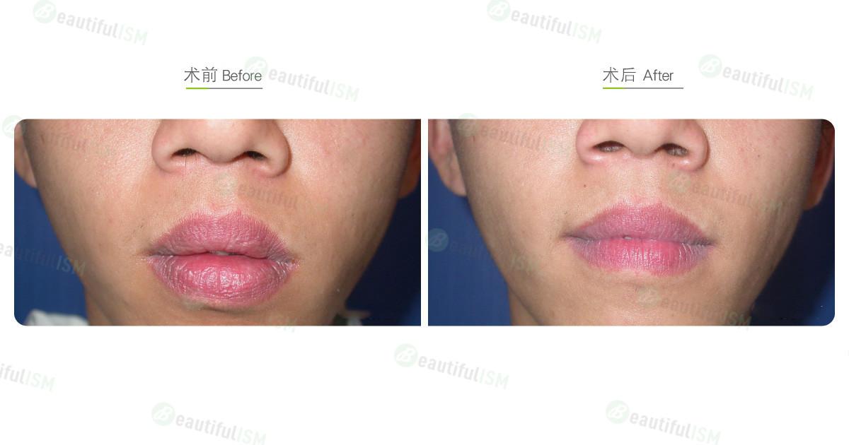 嘴唇整形-缩唇与修唇+上下唇(男)效果图,案例前后对比照片