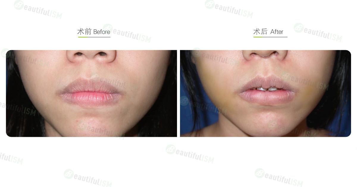 嘴唇整形-缩唇与修唇+术后一周(女)效果图,案例前后对比照片