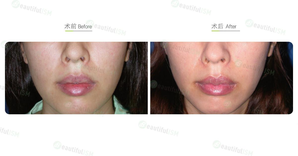 玻尿酸丰唇珠(女)效果图,案例前后对比照片