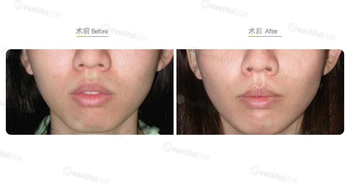 嘴唇整形-唇系带切除(女)效果图,案例前后对比照片