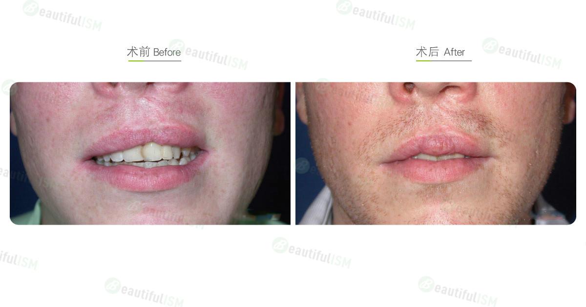 唇腭裂整形(男)效果图,案例前后对比照片