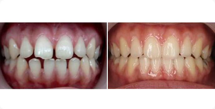 美容冠-贵金属烤瓷牙效果图,案例前后对比照片