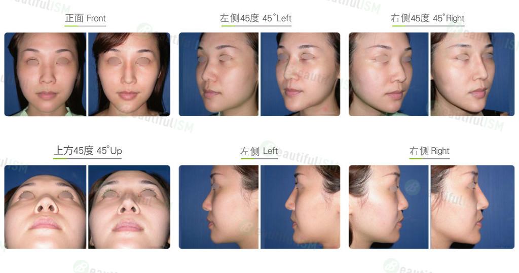 韩式隆鼻+鼻骨缩减(女)效果图,案例前后对比照片