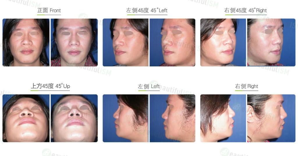 韩式隆鼻+鼻骨缩减+鼻翼缩小(男)效果图,案例前后对比照片