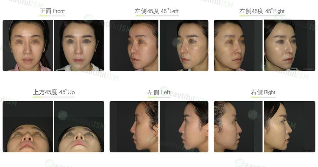 韩式隆鼻修复+鼻骨缩减+鼻翼缩小(女)效果图,案例前后对比照片