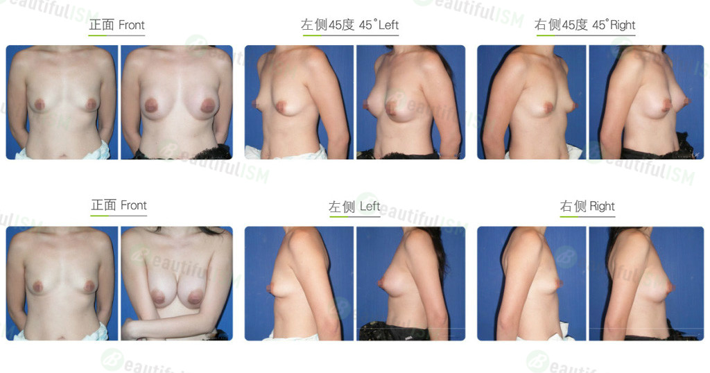 筋膜下鸡胸整形效果图,案例前后对比照片
