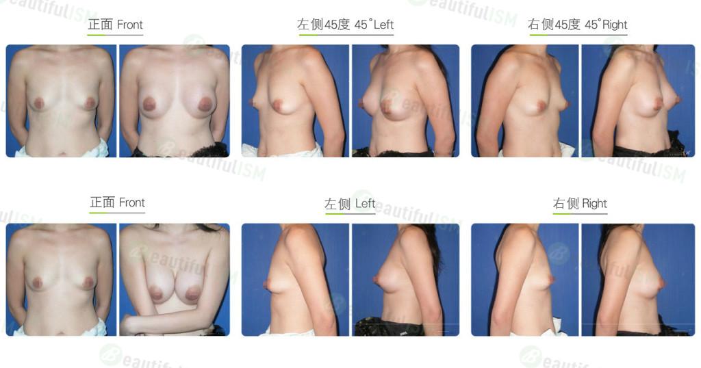 筋膜下大小胸整形效果图,案例前后对比照片