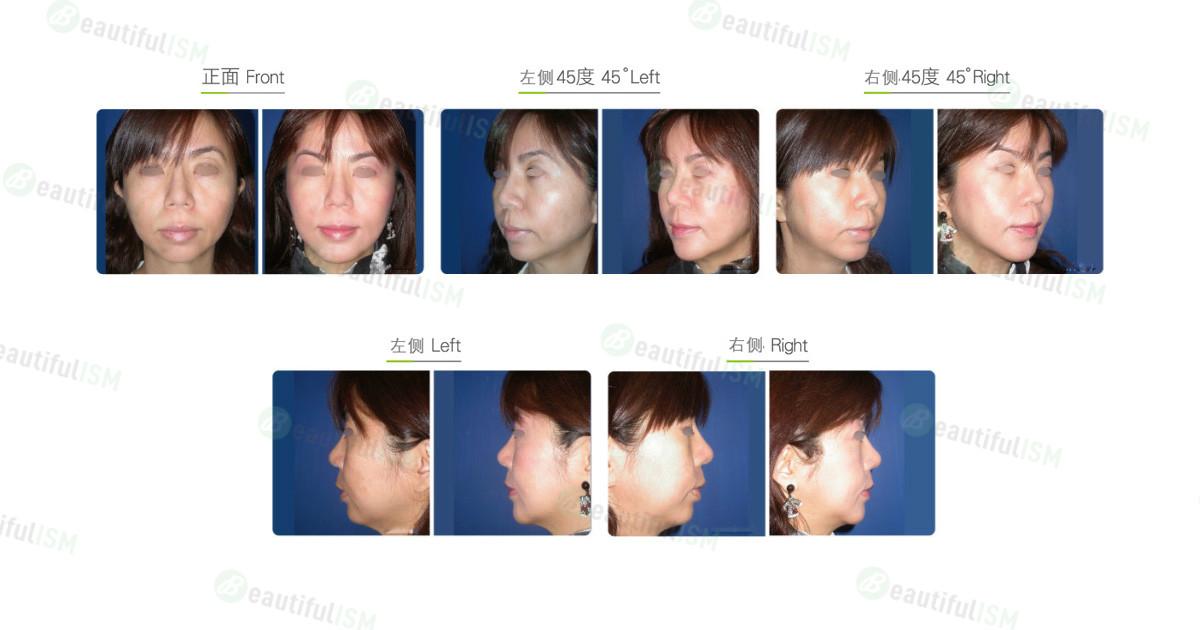垫下巴+人工骨假体植入(女)效果图,案例前后对比照片
