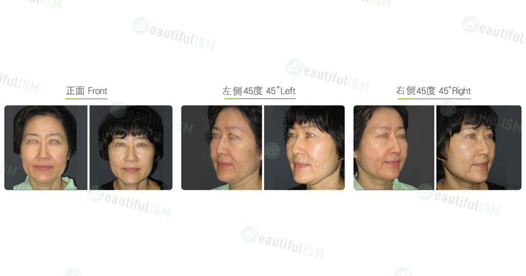 中下脸筋膜悬吊(女)效果图,案例前后对比照片