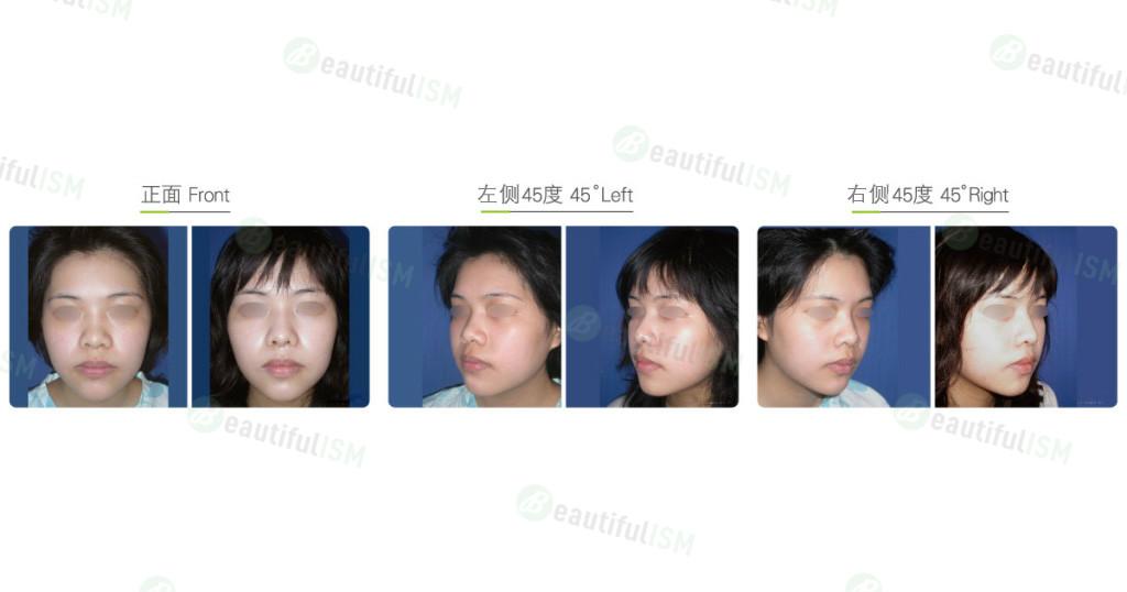 脸部抽脂(女)效果图,案例前后对比照片
