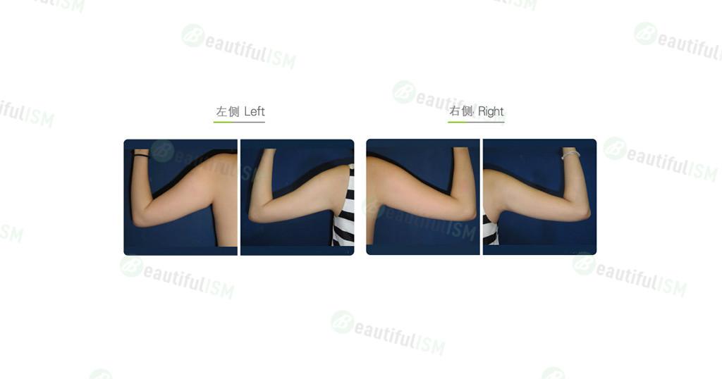 手臂吸脂(女)效果图,案例前后对比照片