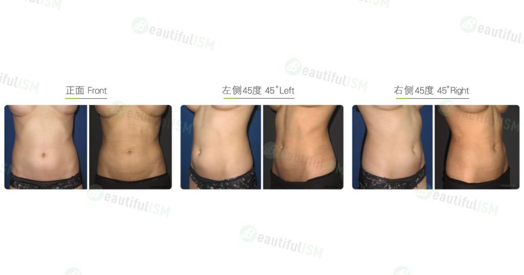 超音波溶脂-腹部肌肉雕塑(女)效果图,案例前后对比照片