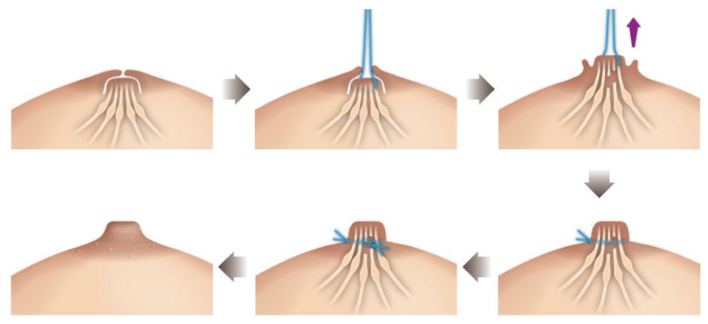微创乳头凹陷矫正手术