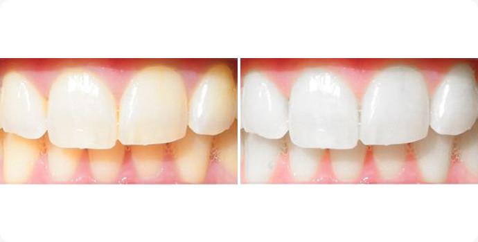 牙齿美白-皓齿美白效果图,案例前后对比照片