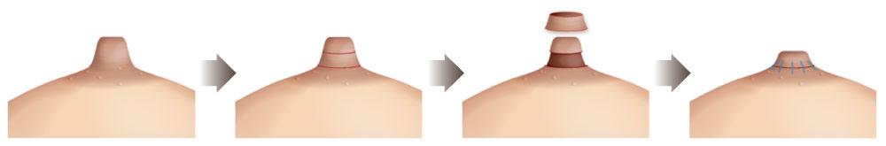 乳头缩短手术