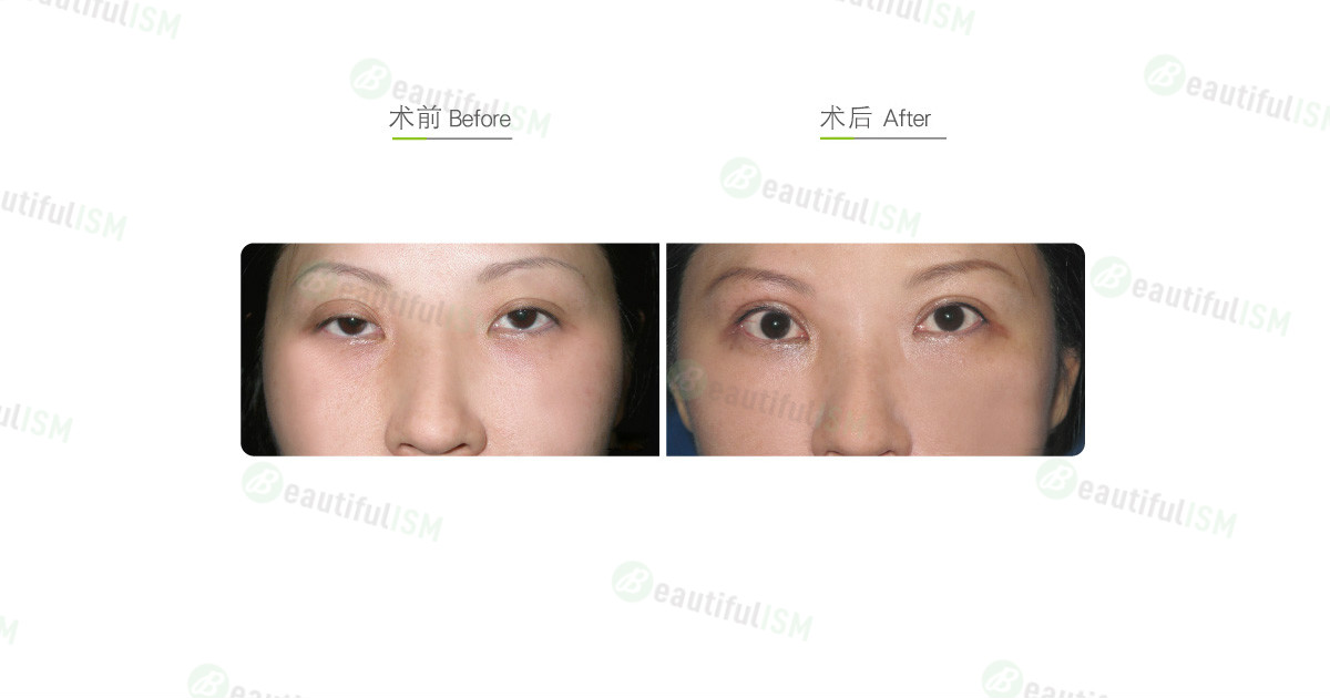 提眼肌矫正(女)效果图,案例前后对比照片
