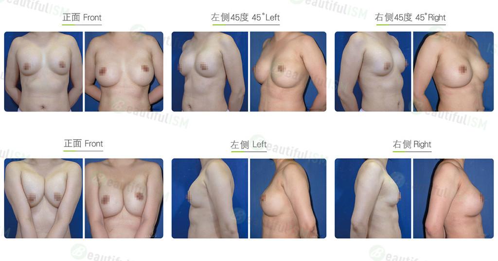 隆胸修复-荚膜清除效果图,案例前后对比照片