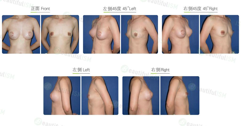 胸部假体取出效果图,案例前后对比照片
